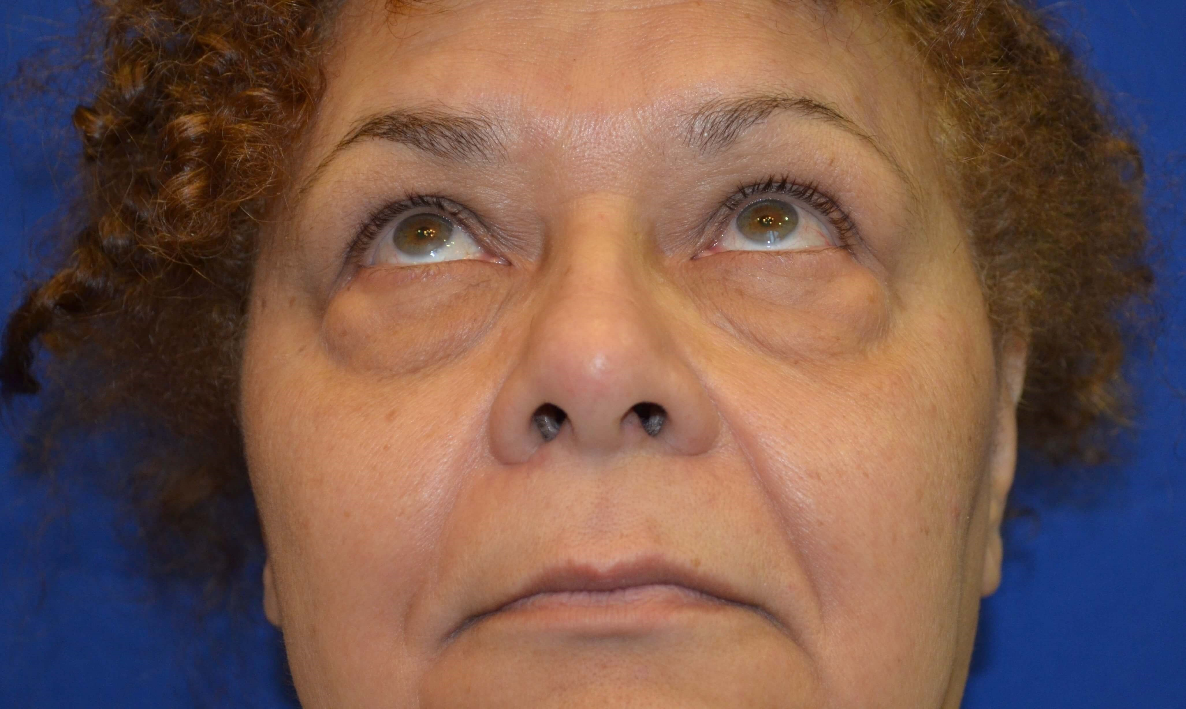 Lower Eyelid Procedure Before