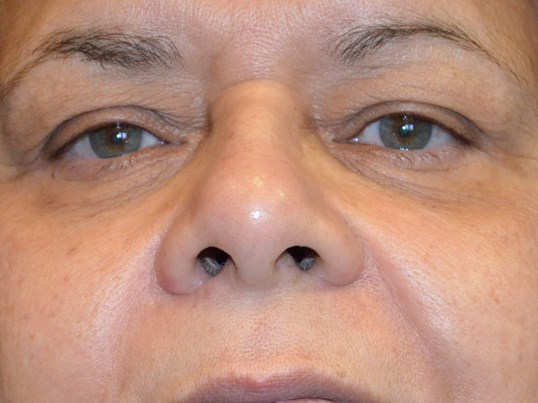 Lower Eyelid Procedure After