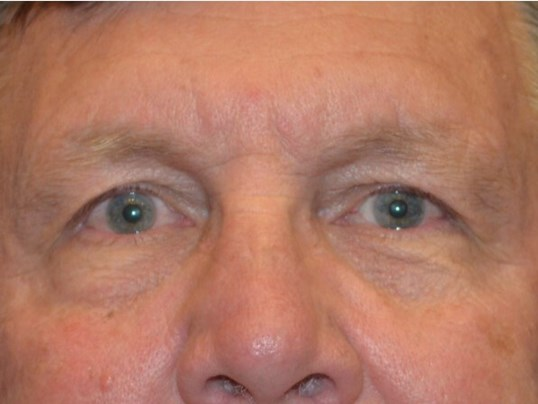 Upper Eyelid Procedure Before