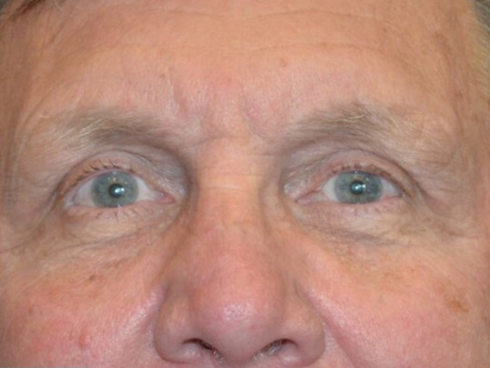 Upper Eyelid Procedure After