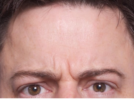 Botox Treatment Before