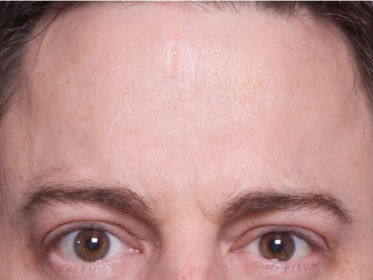 Botox Treatment After