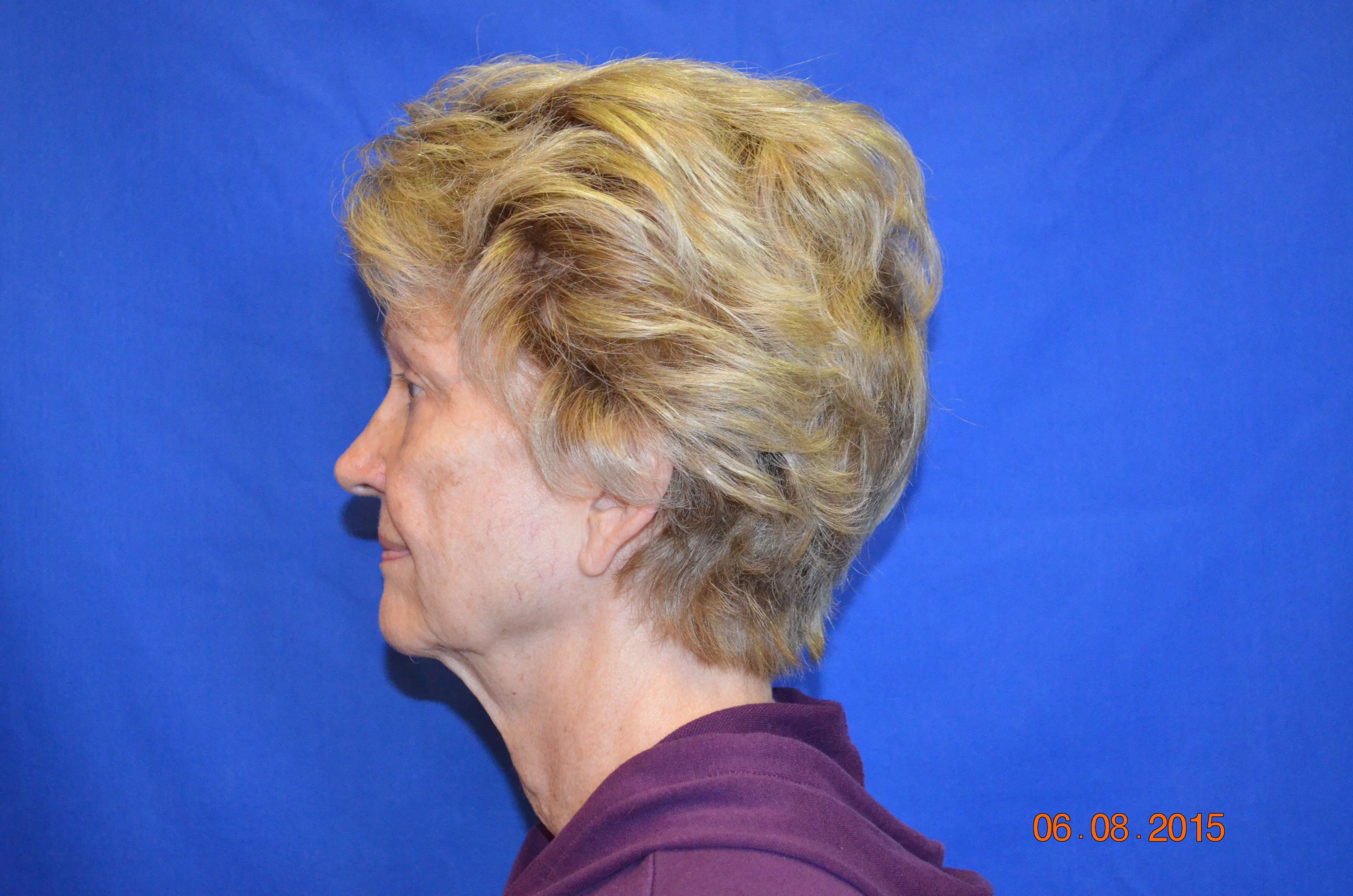 Face/Neck Lift Procedure Before