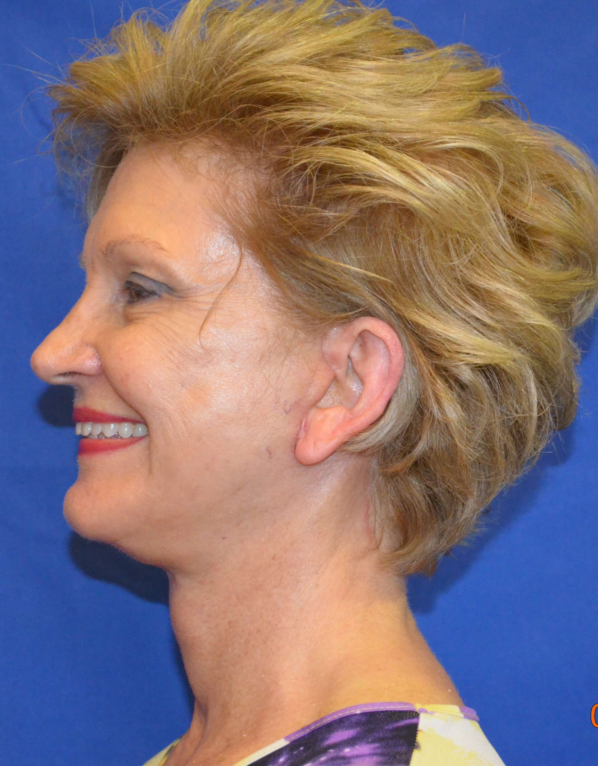 Face/Neck Lift Procedure After