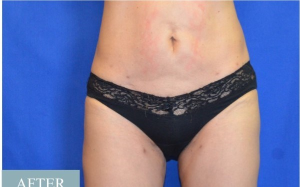 Smart Lipo, Abdomen/Thighs After