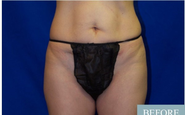 Smart Lipo, Abdomen/Thighs Before