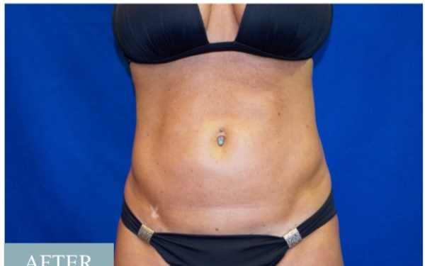 Smart Lipo, Abdomen and Flanks After