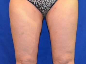 Smart Lipo, Inner Outer Thighs After