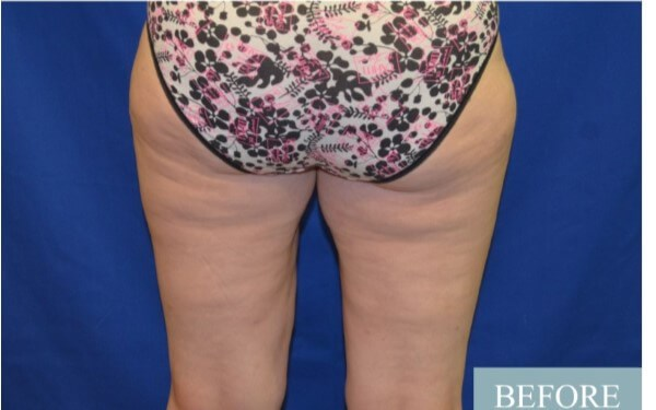 Smart Lipo, Inner Outer Thighs Before