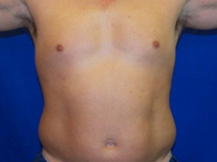 Smart Lipo, Abdomen and Flanks Before