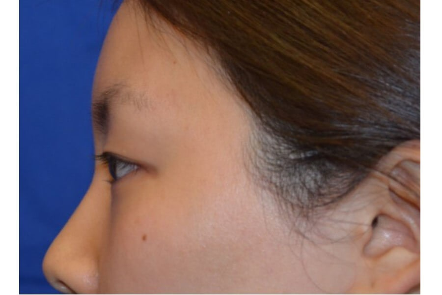 Asian Eyelid Procedure Before
