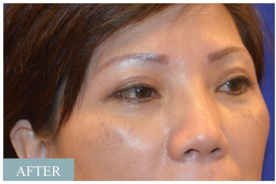 Asian Eyelid Procedure After