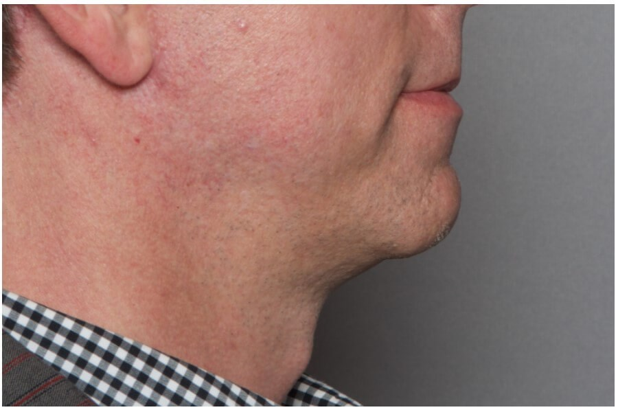 Chin Implant Procedure After