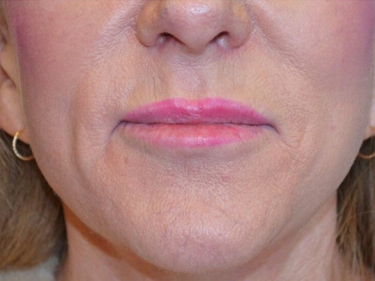 Lip Implant Procedure After