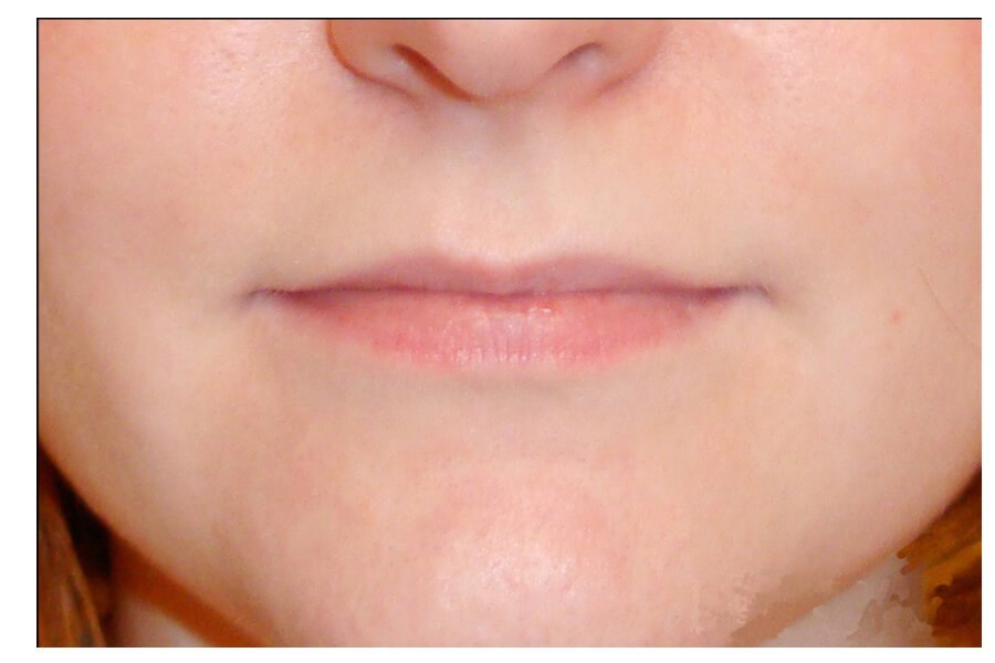 Lip Implant Procedure Before