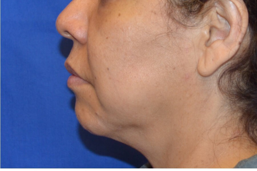Chin Implant Procedure Before