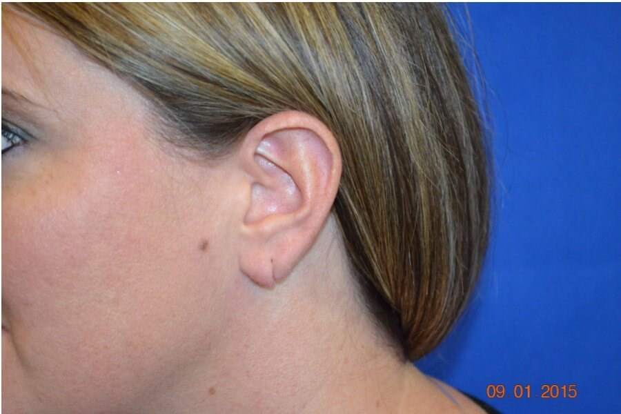 Earlobe Repair Procedure Before