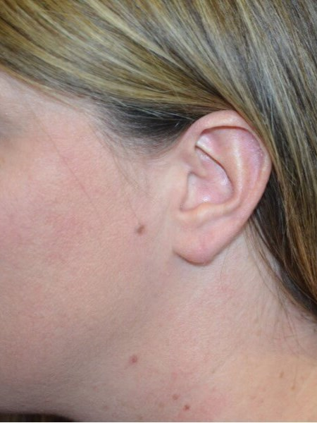 Earlobe Repair Procedure After