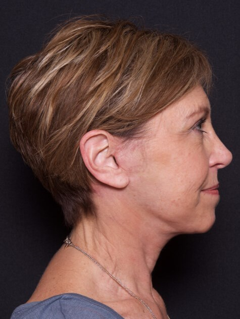 Face/Neck Lift After