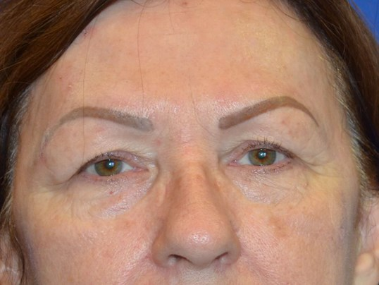 Upper and Lower Eyelids Before