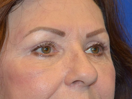 Upper and Lower Eyelids After