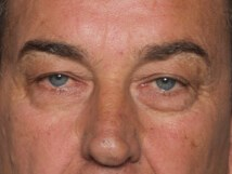 Eyelid Procedure Before