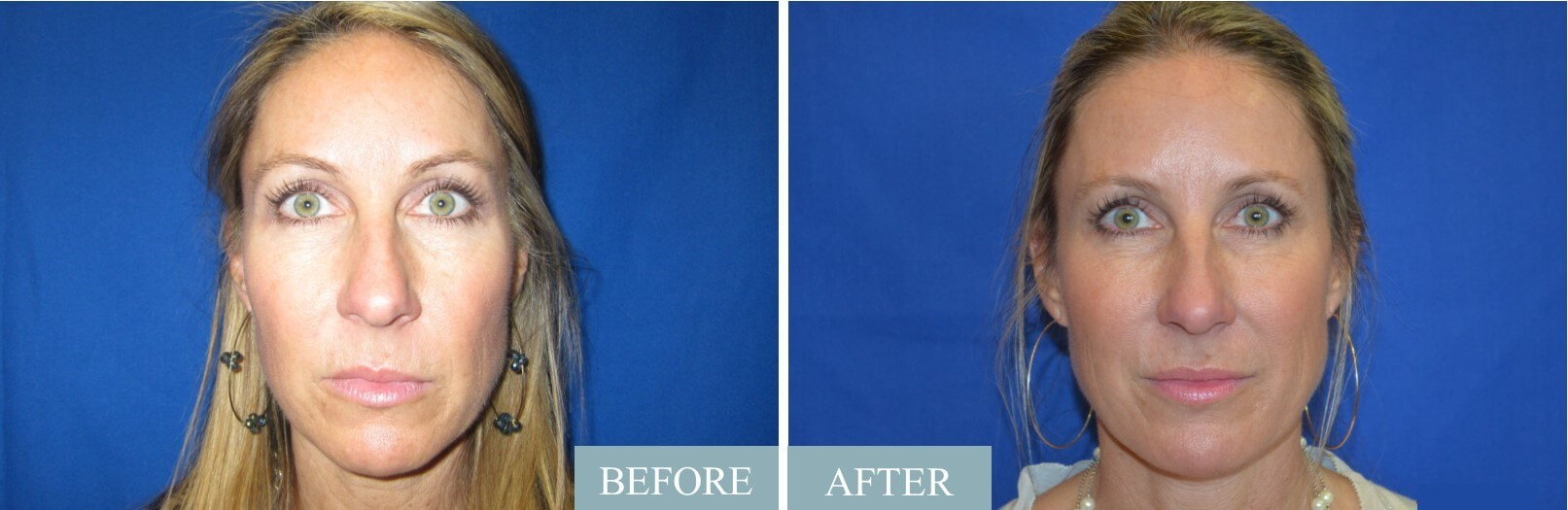 Sculptra Treatment Series Before