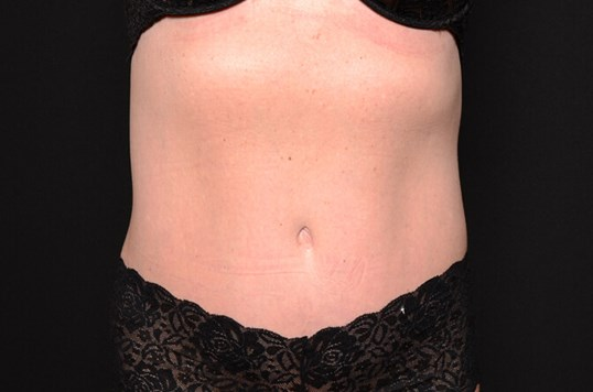BodyTite Flanks and Abdomen After