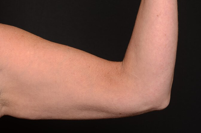 BodyTite Arms Before