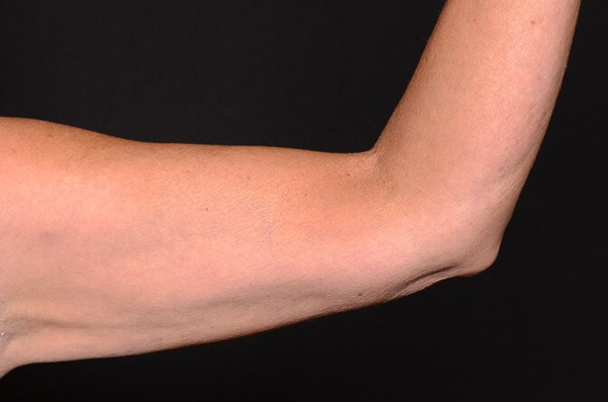 BodyTite Arms After