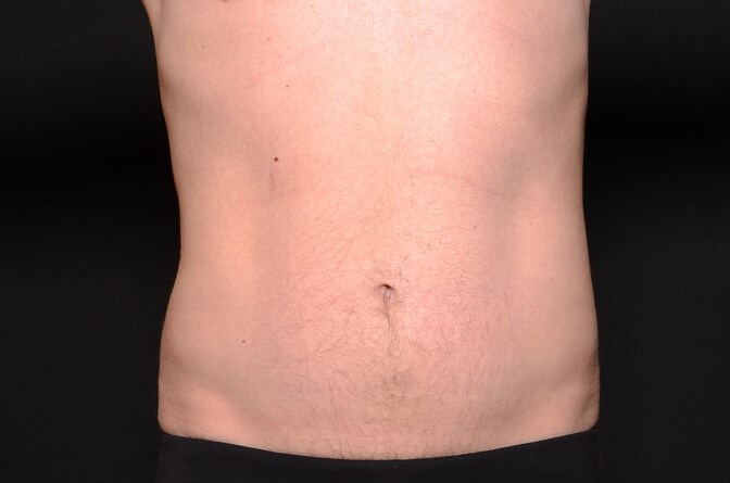 BodyTite Abs Male After