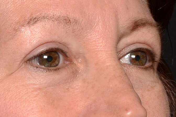 Upper Eyelid Surgery After