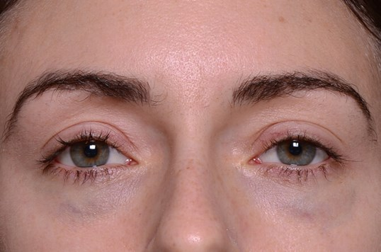 Lower Eyelids Before