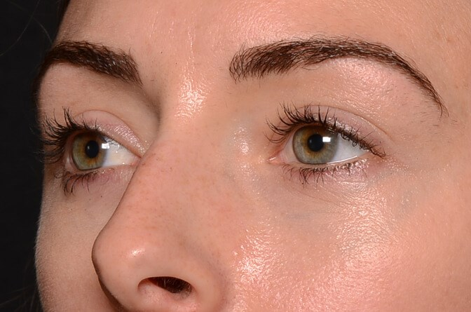 Lower Eyelids After