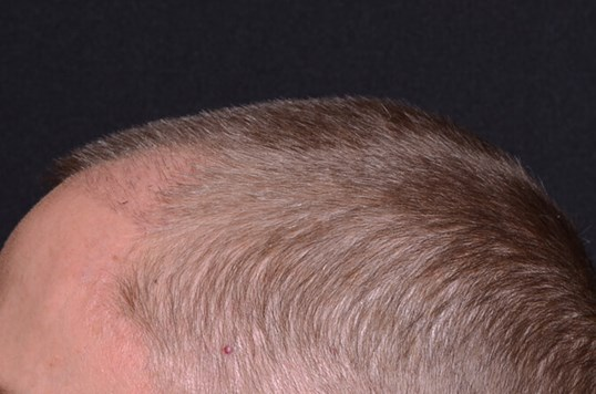 NeoGraft Hair Transplant After