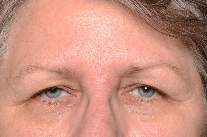 Brow lift and Eye lift Before