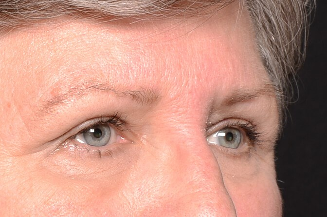 Brow lift and Eye lift After