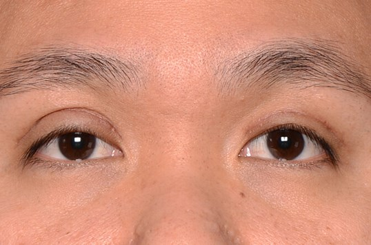Asian Upper Eyelid After