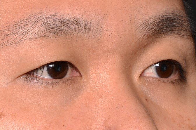Asian Upper Eyelid Before