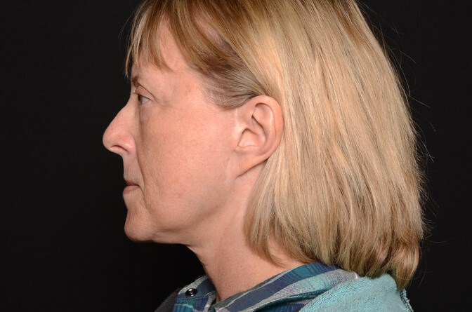 Facelift and Lower Eyelids Before