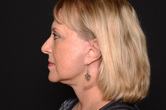 Facelift and Lower Eyelids After