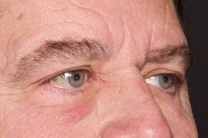 Upper and Lower Eyelid Surgery Before