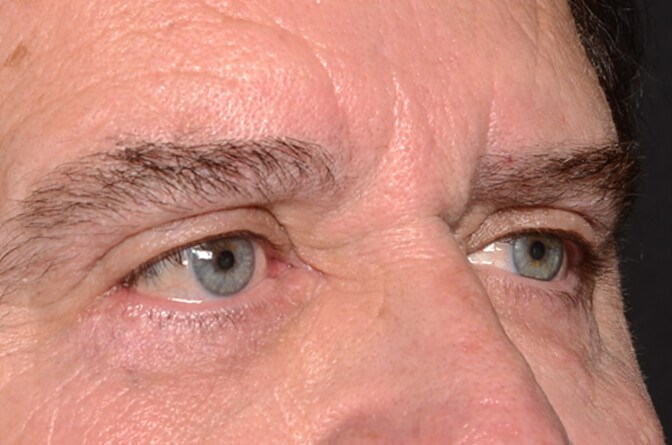 Upper and Lower Eyelid Surgery After